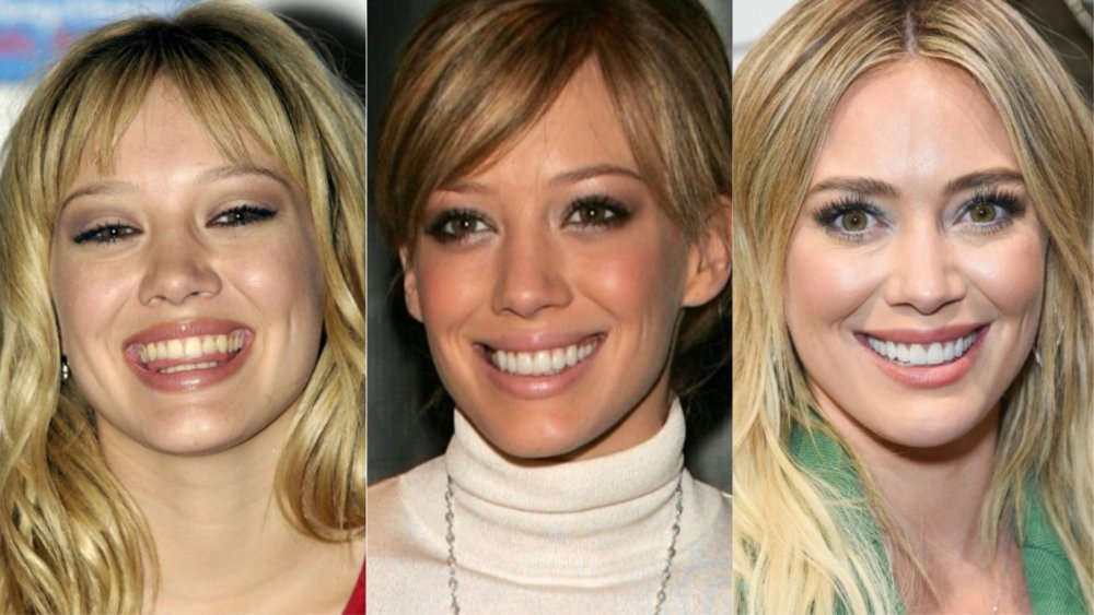 The Best Celeb Tooth Transformations Espanol News24viral