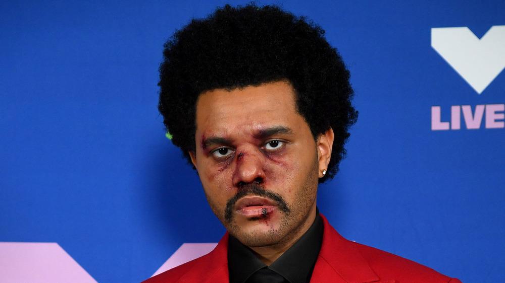 The Weeknd magullado y ensangrentado